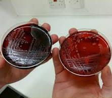 منابع آزمون کارشناسی ارشد میکروب شناسی پزشکی